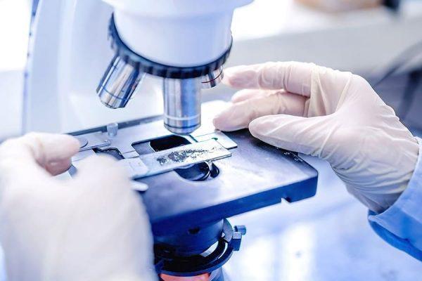 Забор анализов на скрытые инфекции у женщин